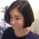 ビビリ毛修正から9ヶ月
